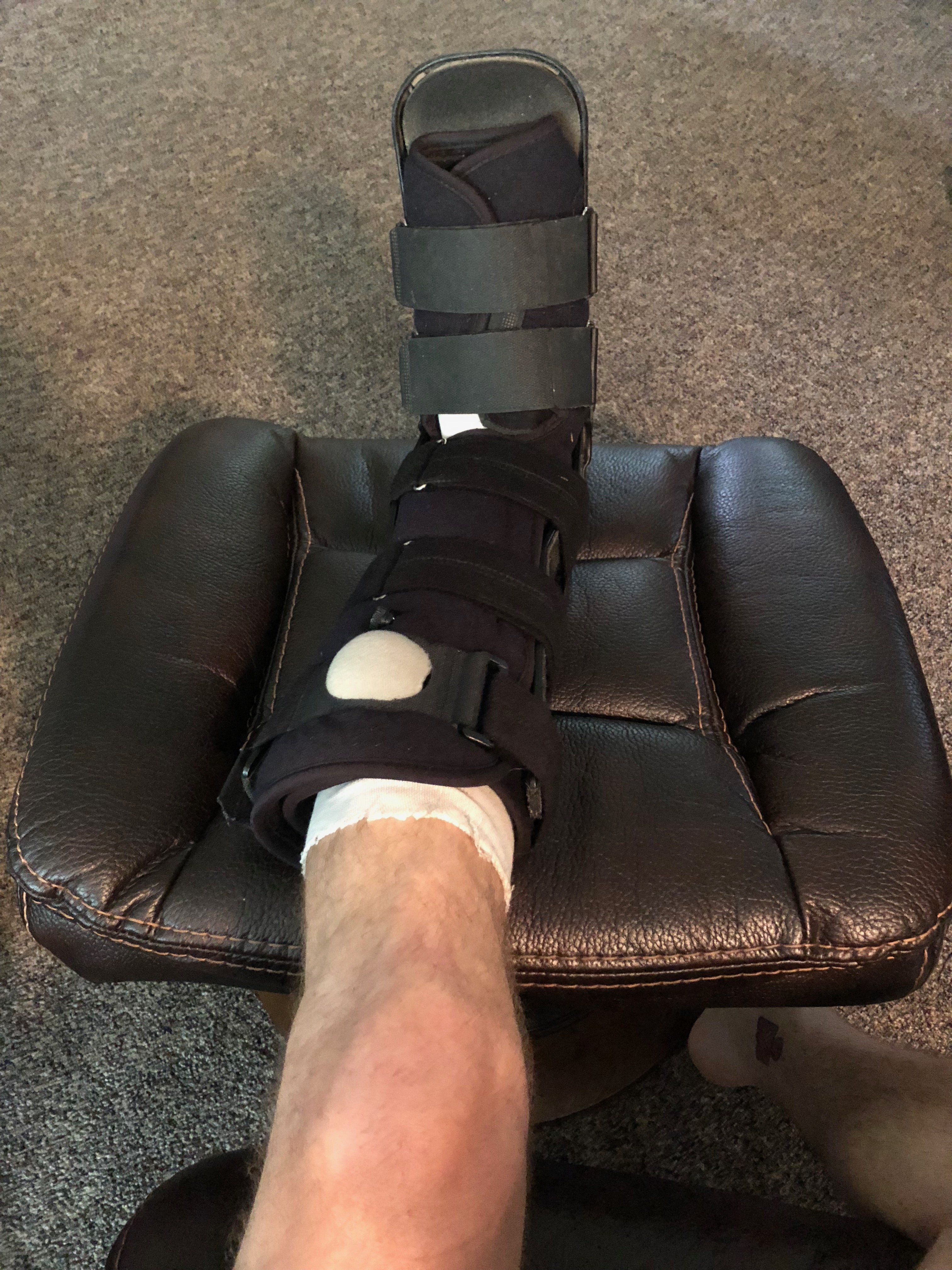 Rupturing My Achilles for Success
